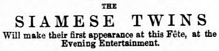 Siamese twins - Bury Free Press (Suffolk) - 16 July 1881
